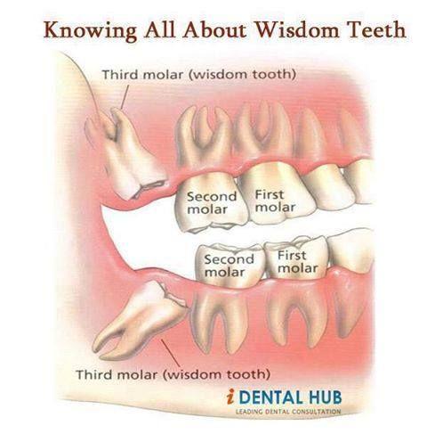 wisdom teeth care instructions